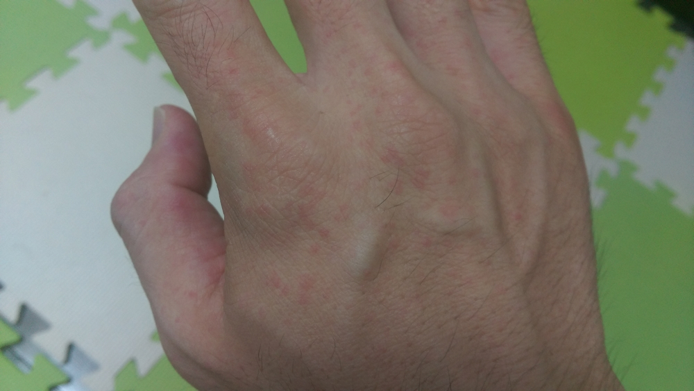 大人の手足口病発疹手
